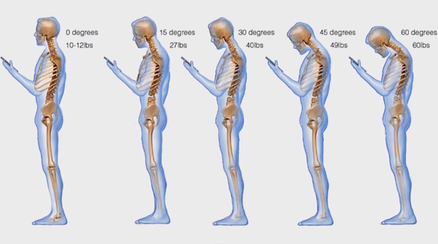 smartphone-backpain_2.png